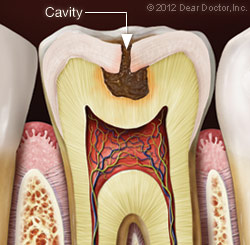 Anatomy of a tooth with a cavity
