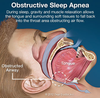 Obstrucive sleep apnea with obstructed airway