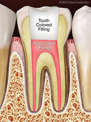 Root canal treatment with tooth-colored filling