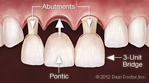 Image of three unit dental bridge with pontic replacement