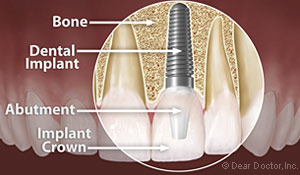 Anatomy of a dental implant at Baton Rouge dentist