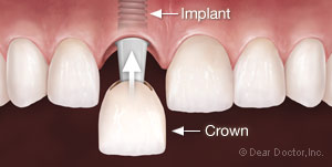 Dental implant insertion with crown available with your Baton Rouge dentist