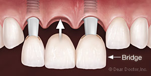three unit dental bridge insertion from Baton Rouge dentist