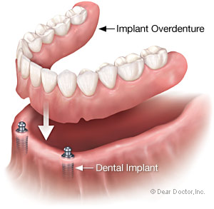 Implant overdenture supported by dental implant from Baton Rouge dentist