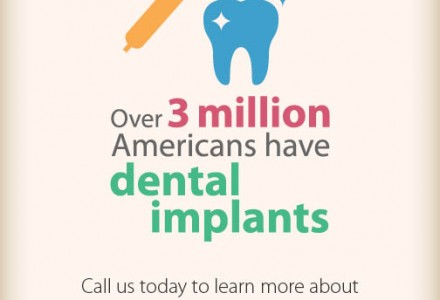Dental Implants Facts