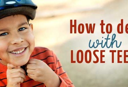 How to deal with loose teeth