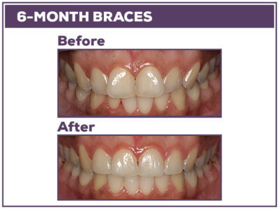 6-month-braces-in-Baton-Rouge WEB