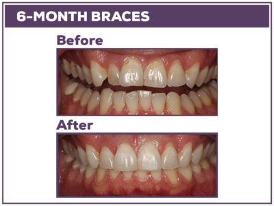 Before-and-after-6-month-braces-2018